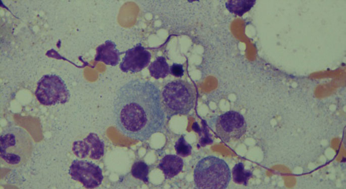 Image of myeloma cell