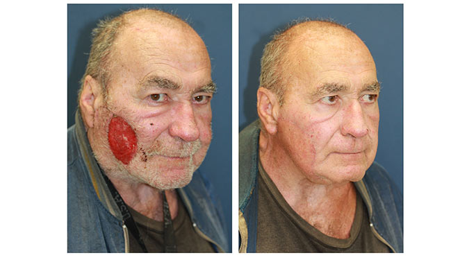 facial reconstruction before and after photo