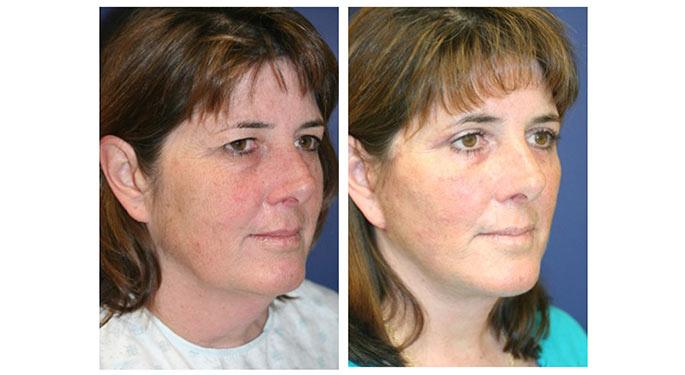 Facial Rejuvenation Before After Gallery Mount Sinai New York
