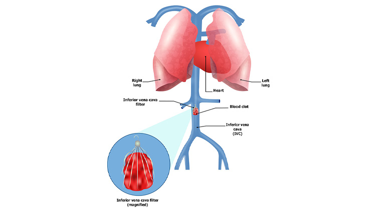 Inferior Vena Cava (IVC ) Filter Management