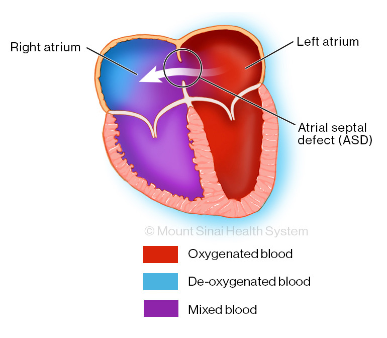 Atrial Septal Defect (ASD) Diagnosis & Treatment | Mount Sinai - New