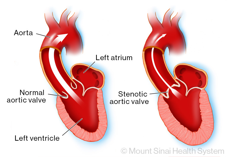 A normal aortic valve compared with a narrow valve