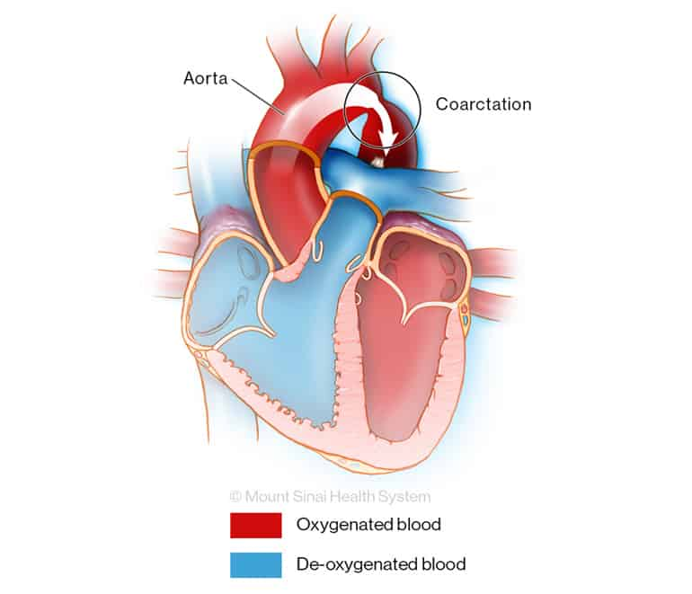 Narrowed aorta that slows oxygen flow to body illustration
