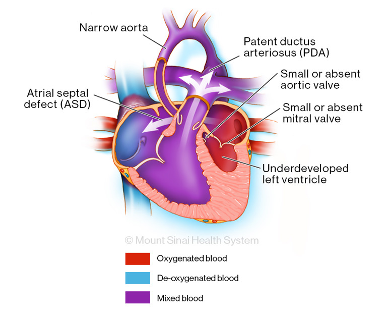 Left heart syndrome illustration