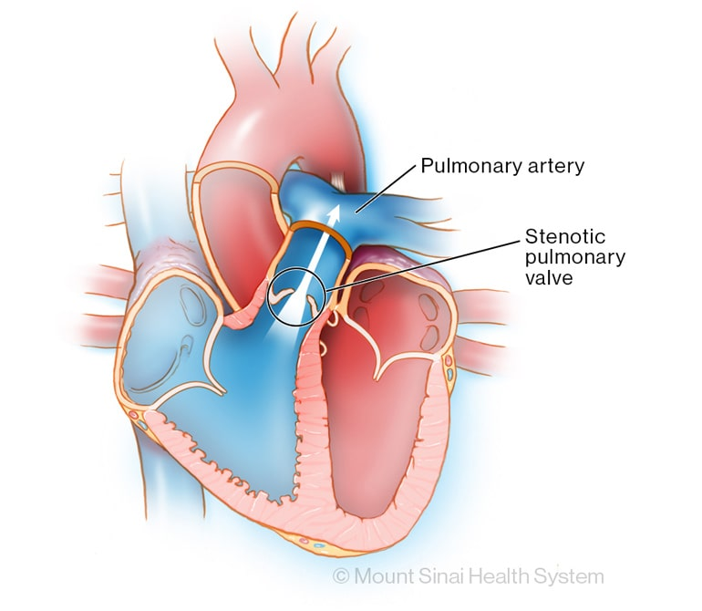 Pulmonary Valve Stenosis Diagnosis & Treatments | Mount Sinai - New York