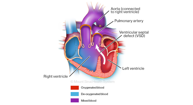 Illustration of DORV with subpulmonary VSD