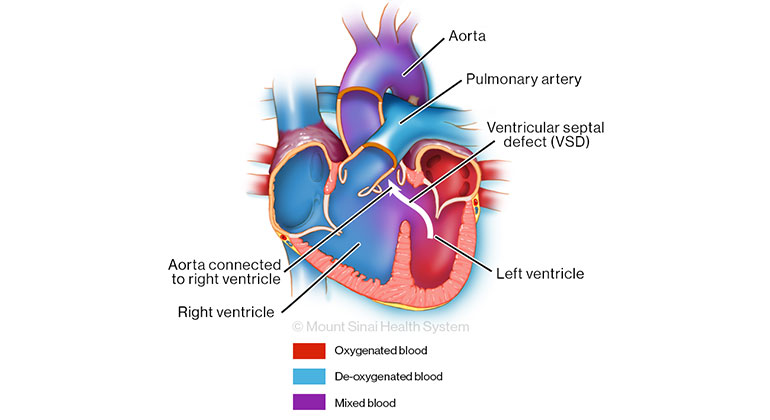 Illustration of Congenital Heart