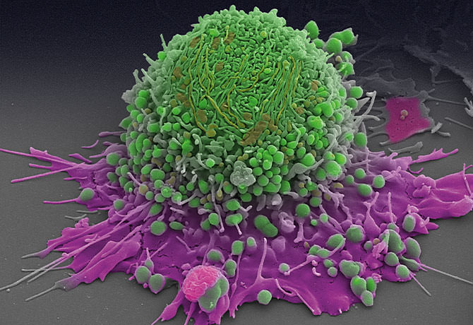 A photo of a prostate cancer cell prepared in the William Oh, MD, laboratory. Andrew P. Leonard, photo.