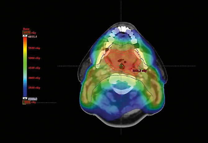 A computer-generated image depicts a standard, high-dose intensity modulated radiation therapy (IMRT) treatment plan for base of tongue cancer.