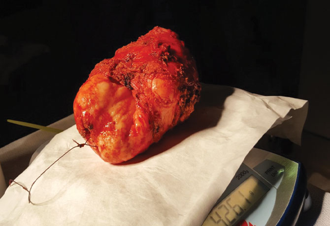 A photo of the prostate after it was removed, which weighed 426 grams