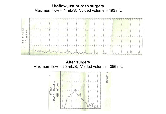 A chart showing Uroflow just prior to surgery and after surgery