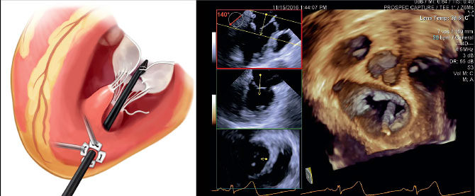 The NeoChord device, show in illustration, is inserted in the beating heart through a small incision, guided by echocardiography, shown in image.