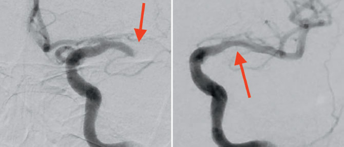 Two photos: Left, the initial diagnostic angiogram shows a left M1 occlusion. Right: the angiogram shows the clot has been removed and the vessel is recanalized.