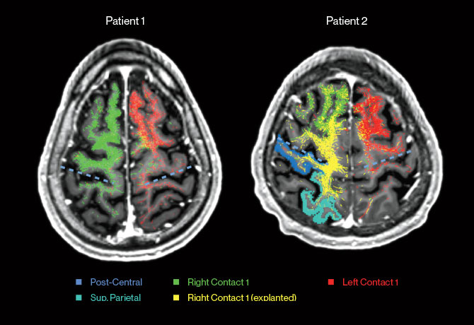 Images above show a comparison of the tractography from caudal zona incerta deep brain stimulation