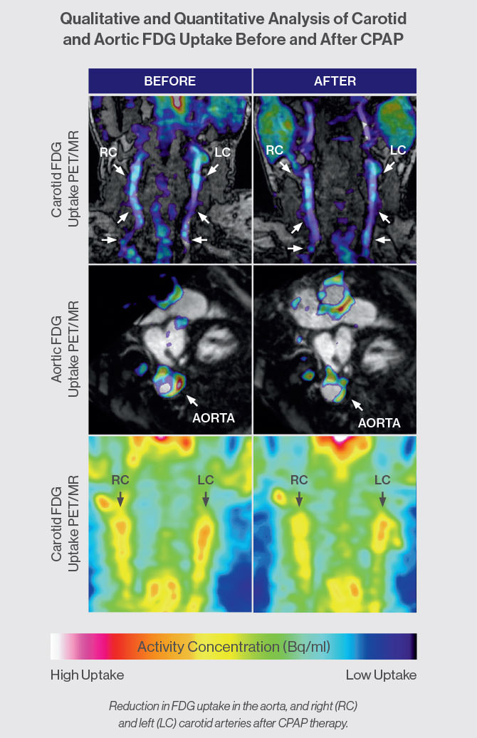 A series of images shows reduction in FDG uptake in the aorta, and right (RC) and left (LC) carotid arteries after CPAP therapy.
