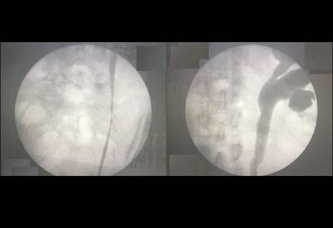 Two images including a preoperative cystoscopy image depicting left proximal ureteral stricture and, right, showing evidence of hydroureteronephrosis.