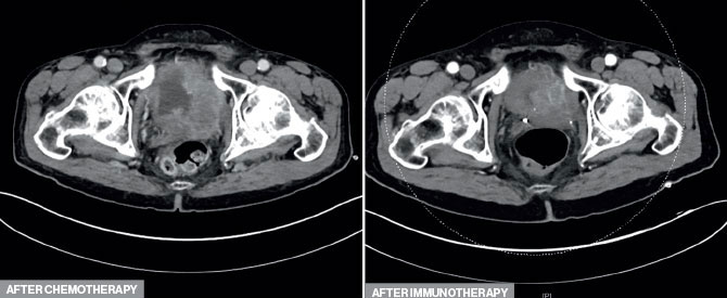 Two images show after chemotherapy, top, the tumor was still large and invasive; after immune checkpoint inhibitor, the tumor was smaller and more confined to the bladder.