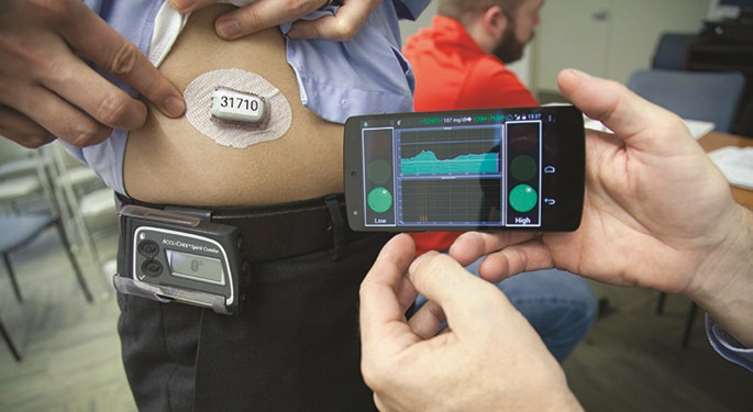 Artificial Pancreas
